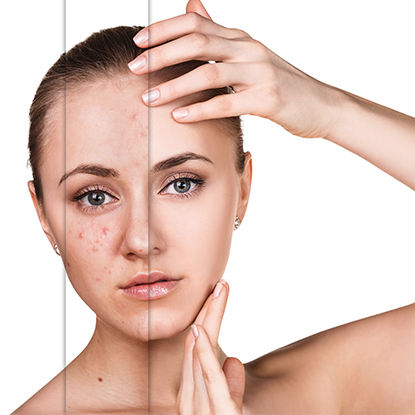 A woman's skin before and after getting skin treatments