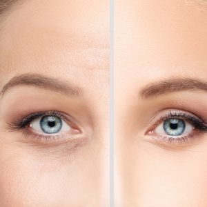Woman's skin before and after skin treatment
