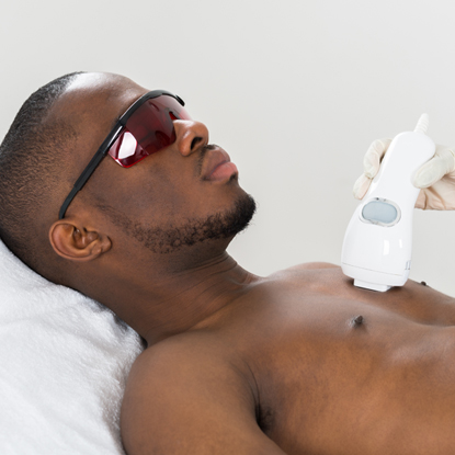 A man lying down getting laser hair removal